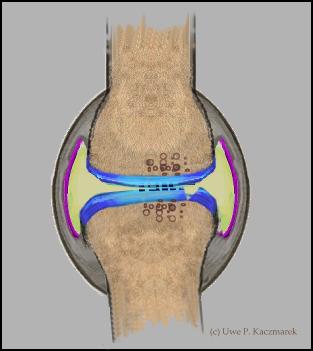 Verletzungen der Gelenkkapsel, Bänder, Knorpel und Knochen