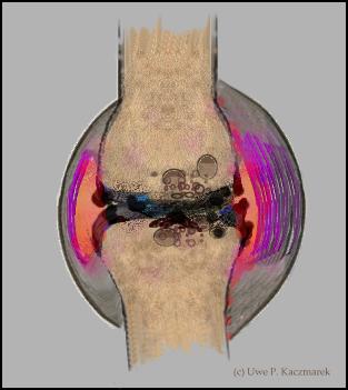 knieschmerzen innenseite beim beugen